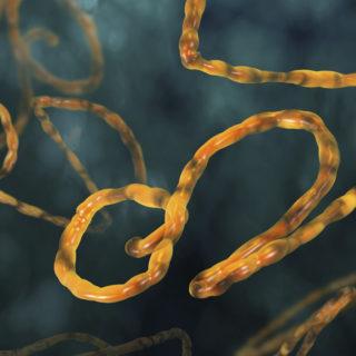 ebola, virus, disease, outbreak, pandemic, epidemic